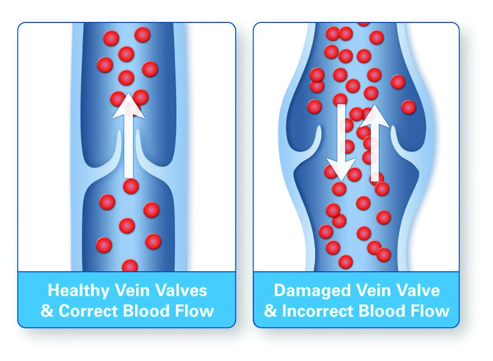 PVEvaluations2 Venous Peripheral Venous Evaluations  PVEvaluations2