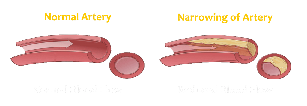 12 Vascular What is Vascular Disease 12 1024x355