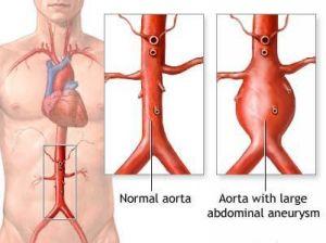 Aneurysms Vascular What is Vascular Disease Aneurysms