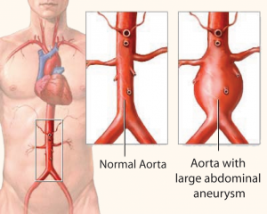 abdominal-aortic-evaluations vascular Exams – For Patients abdominal aortic evaluations 300x240