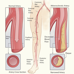 arterial-evaluations Vascular What is Vascular Disease arterial evaluations 300x300