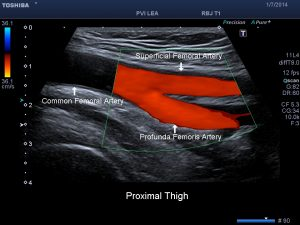 arterial-evaluations3 commonly ordered vascular exams Commonly Ordered Vascular Exams  arterial evaluations3 300x225