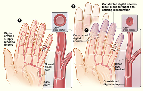 raynauds-evaluation vascular Exams – For Patients raynauds evaluation
