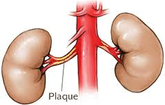 renal-evaluations Vascular What is Vascular Disease renal evaluations